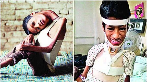 Mahendra tươi tắn sau phẫu thuật.(Ảnh: Internet)