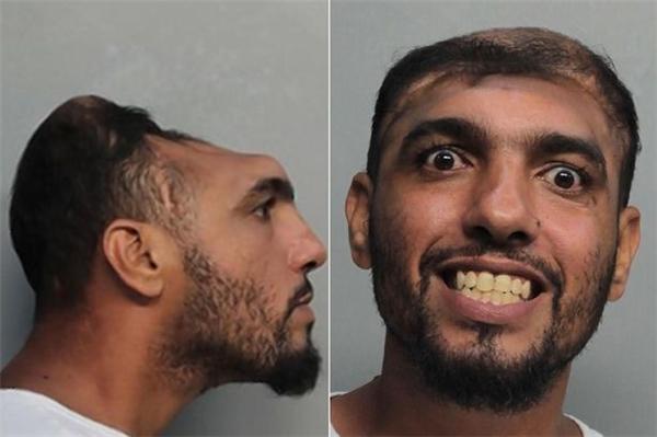Ớn lạnh hình ảnh tên sát nhân chỉ có nửa cái đầu tại Mỹ