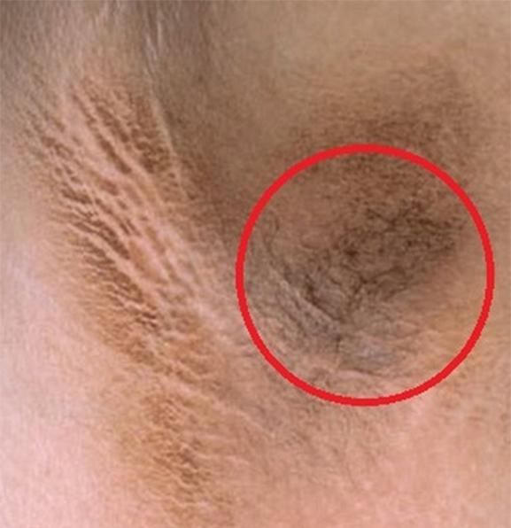 Mảng da tối màuthường xuất hiện ở nách, cổ, bẹn, to bằng một bàn tay, khô và có thể gây ngứa.(Ảnh: Internet)