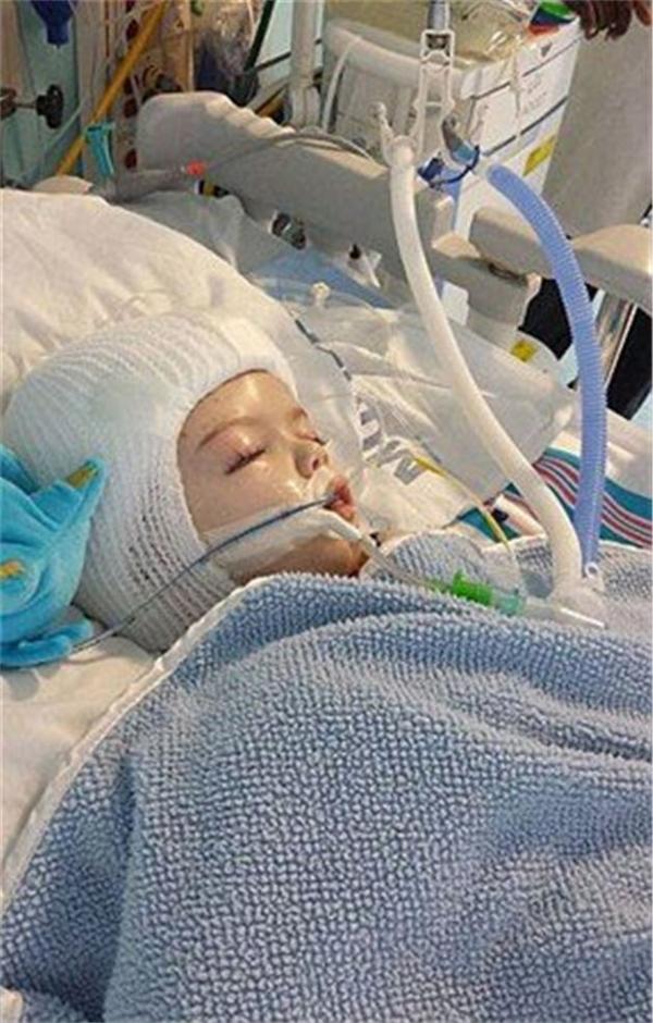 Sau ca phẫu thuật kéo dài suốt 20 giờ, giờ đây 2 em đã có thể phát triển độc lập như bao đứa trẻ khác.