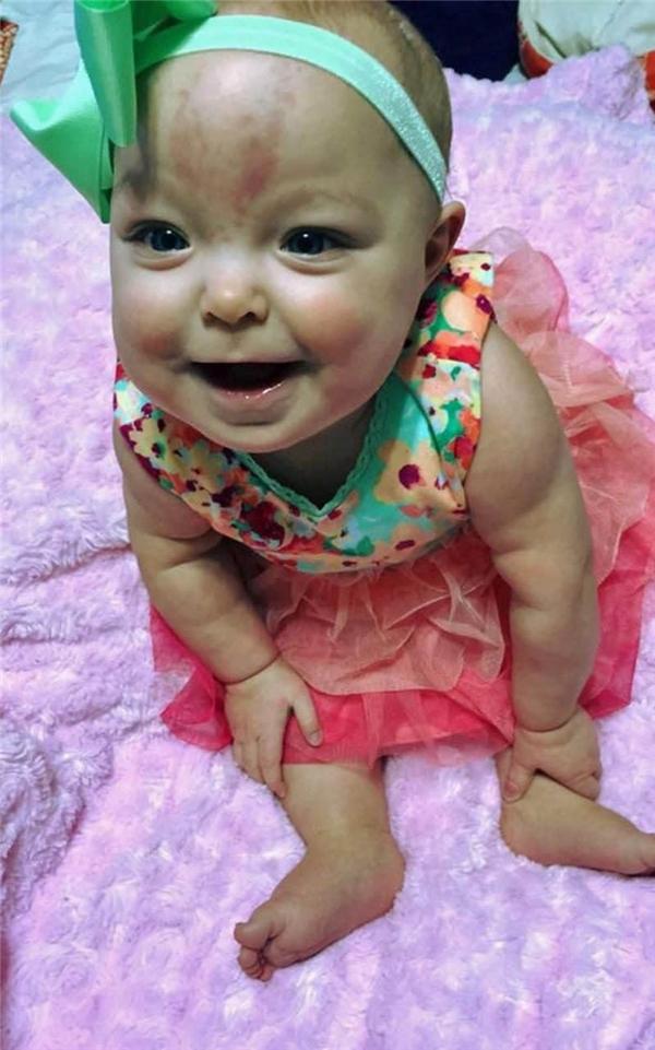 Sau phẫu thuật, cô bégiờ đã có thể khép miệng, nở nụ cười và bi bô tập nói.