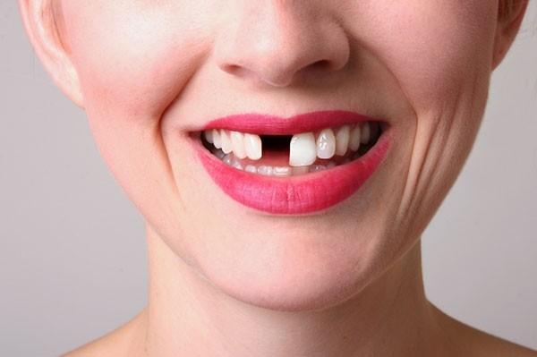 Giấc mơrụng răng mang ý nghĩa tích cực lẫn tiêu cực.