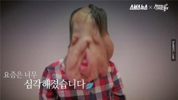 Gương mặt biến dạng là nỗi mặc cảm lớn của Huyn Hee.