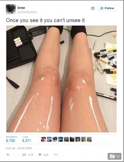 Bức ảnh nhận được hơn 5000 ý kiến của người dùng mạng, nhiều người khẳng định đôi chân này đã được phủ một lớp dầu bóng hoặc đang bọc trong một lớp nilong bóng, số kháckết luận trên đôi chân thực ra chỉ có vài vệt sơn trắng được phết lên.