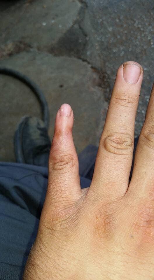 Khi ngón tay út của bạn bị đứt và bác sĩ đã lỡ tay nối vào một... ngón tay trẻ em?!
