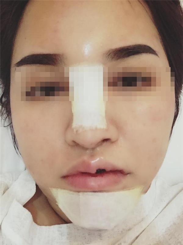 """Cô gái tháo hết """"đồ giả"""" ra sau phẫu thuật thẩm mĩ gây sốt."""