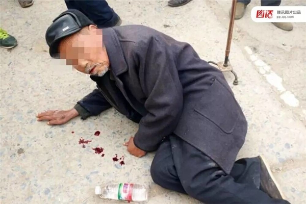 """Tháng 11/2015 tại Túc Châu, An Huy, ông già này đã diễn vô cùng sâu bằng cách thổ huyết ngay trên đường. Nhưng khi """"bị"""" đưa vào viện, người ta mới vỡ lẽ máu đó chỉ là phẩm màu."""