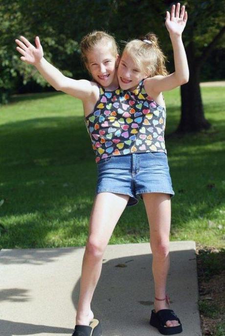 Hai chị em Abigail và Brittany Hensel là cặp song sinh dính liền với 4 lá phổi, hai trái tim, hai dạ dày, một gan, một ruột già và chung một cơ quan sinh sản.