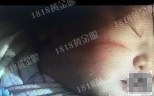 Vừa chào đời, em bé này đã nhận một vết rách trên mặt do sơ suất của bác sĩ.(Ảnh: Sina)