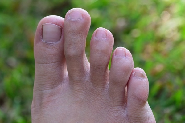 """#3 Đó là kẽ chân, đừng nghĩ """"lung tung"""" nhé.(Ảnh: Internet)"""