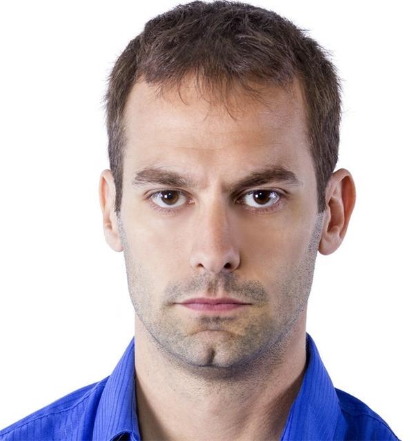 #7 Phần cằm của nam giới râu tua tủa chính là đáp án cho ảnh số 7.(Ảnh: Internet)