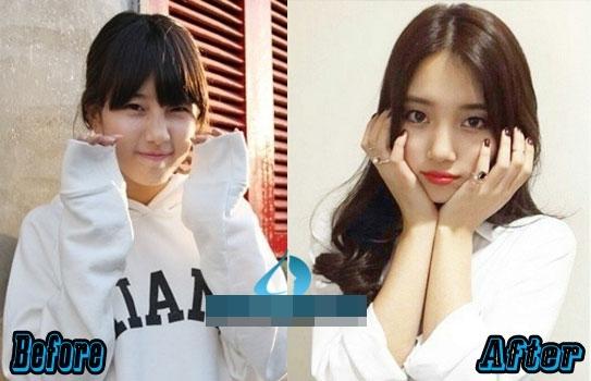 Hai nữ thần tượng Hàn bị cho là đã phẫu thuật mí mắt dưới là IU và Suzy.