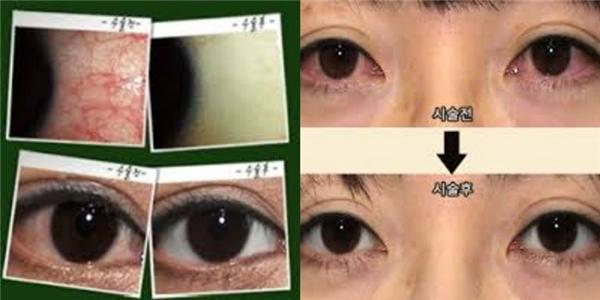 """Phẫu thuật làm trắng nhãn cầu sẽ được vận dụng bằng cáchloại bỏ các tĩnh mạch """"chết"""" trong đôi mắt."""