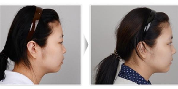Để đáp ứng tiêu chuẩn về vẻ đẹp hoàn hảo và đảm bảo đủ chiều cao để đi xin việc làm, nhiều người đã tiến hành phẫu thuật chỉnh sửa lại hình dáng của đầu.