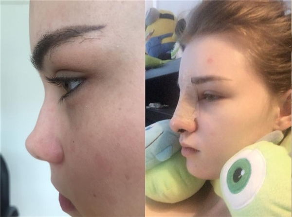 Ảnh trước và khi sau phẫu thuật được cô nàng đăng tải.