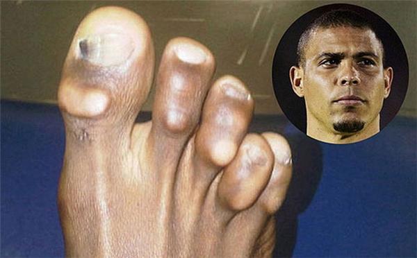 Không thể tưởng tượng được đây là bàn chân phải của Ronaldo nữa vì tất cả những đầu móng chân đều bị chai sần với những cục chai to khủng khiếp. (Ảnh: internet)