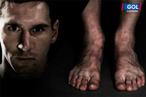 Đây là đôi chân của siêu sao Messi với các đầu móng của ngón chân cái bị hỏng, các ngónchân và cả bàn chân đều gân guốc và rất thô. Việc thi đấu quá nhiều khiến chân của Messi bị sưng đỏ lên và có rất nhiều vết trầy xước. (Ảnh: internet)