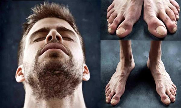 Chân củaGerard Pique có móng chân cái to bất thường và bị ép biến dạng vào các ngón chân khác. (Ảnh: internet)