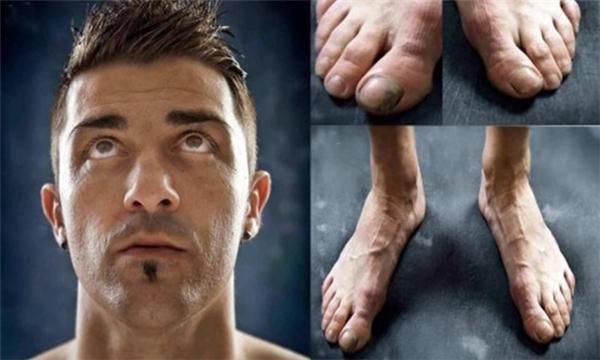Tương tự là bàn chân củaDavid Villa. (Ảnh: internet)