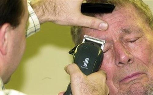 Một cụ ông người Mỹ tên Burgher quyết định cạo đôi lông mày dài của mình nhằm gây quỹ từ thiện cho chiến dịch trừ bệnh bại liệt PolioPlus.