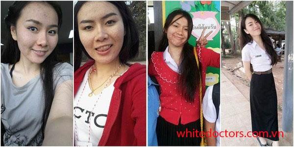 Trải nghiệm sữa rửa mặt y học White Doctors sáng da ngừa mụn