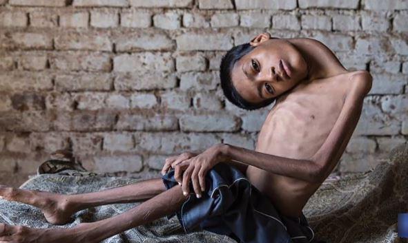 Dị tật cột sống này đã khiến cậu bé bị teo cơ, khả năng đi lại cũng như sinh hoạt hàng ngày của Mahendra bị hạn chế.
