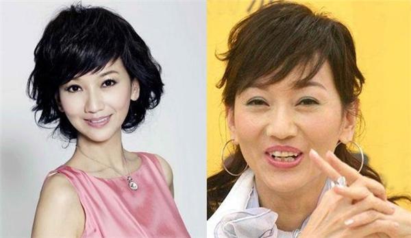 Người đẹp Triệu Nhã Chi cũng nằm trong danh sách có nụ cười không khả ái.
