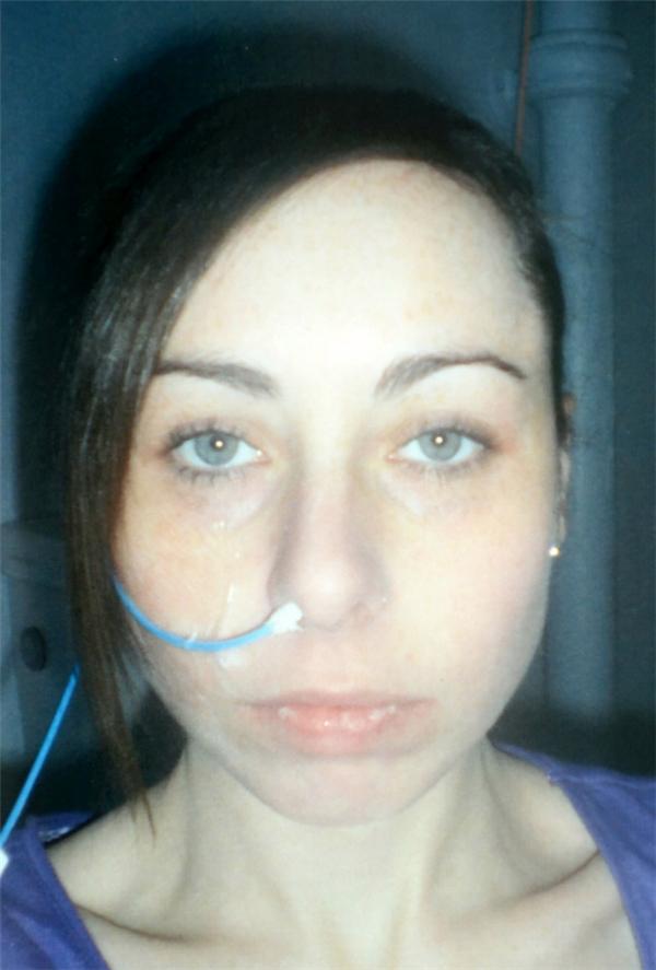 Hình ảnh của cô vào năm 2011, lúc mới được chẩn đoán, phải truyền chất dinh dưỡng qua đường mũi.