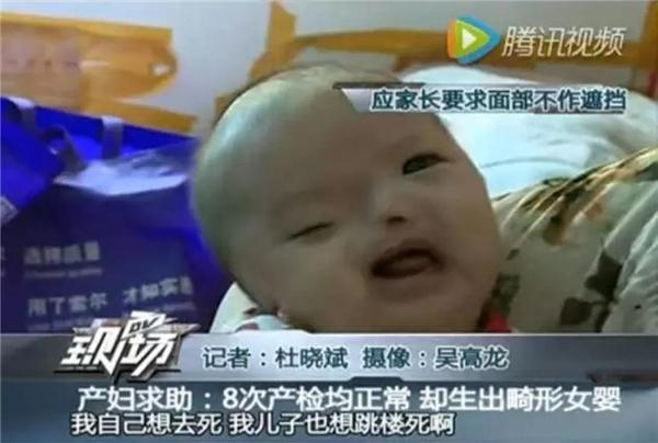 Cô bé tội nghiệp chỉ có một lỗ mũi, một mắt mở được, mắt kia không hoạt động, và không có cả hai tai. (Ảnh: internet)