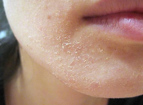 Da khô bong tróc khiến cho diện mạo xuống sắc rất nhiều.
