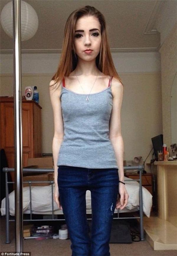 Nhịn ăn uống quá lâu, cân nặng của Faye giảm rõ rệt nhưng đây cũng chính là thời điểm cô bị mắc chứng biếng ăn và không thể khắc phục.