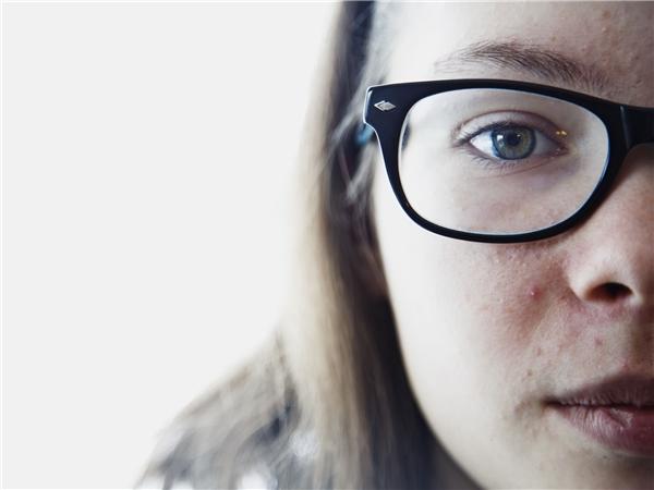 Alexis được chẩn đoán sẽ mù vĩnh viễn khi cô bé tròn 17 tuổi.