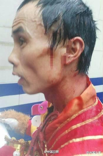 Dưới sự giám sát của cảnh sát hai nhóm đã thỏa thuận tự giải quyết với nhau và người đàn ông bị thương sẽ nhận được 1500 tệ (5 triệu VNĐ) tiền bồi thường.
