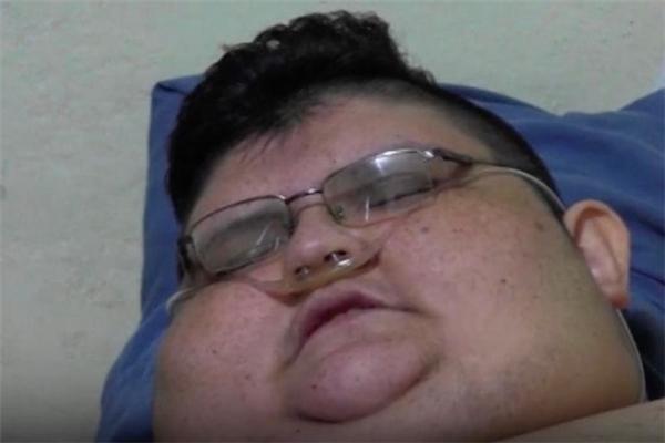 Juan bị béo phì từ nhỏ nhưng sau một chấn thương nặng năm 17 tuổi, tình hình càng tồi tệ hơn.