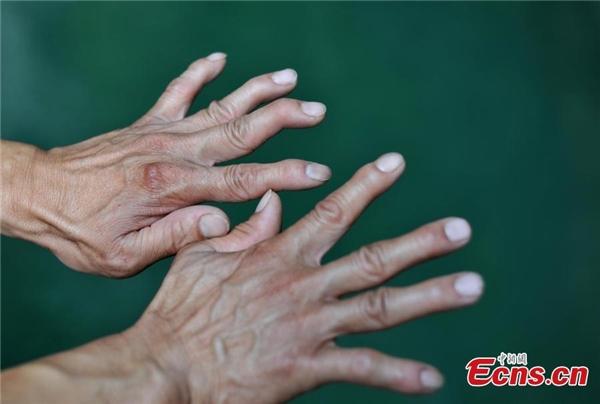 Bàn tay trông khác biệt và có phần dị dạng của ông Hoàng.