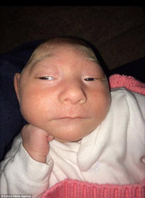 Aniyah Toddkhi sinh ra chỉ có 10% bộ não.