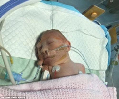 Toddđã phải trải qua phẫu thuật khi vừa sinh ra.