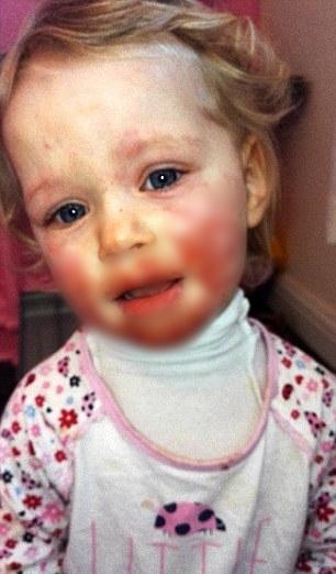 """Những vết loét bắt đầu """"hoành hành"""" trên khuôn mặt cô bé."""