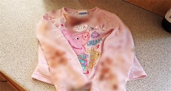 Quần áo em lúc nào cũng dính máu vì cọ sát.