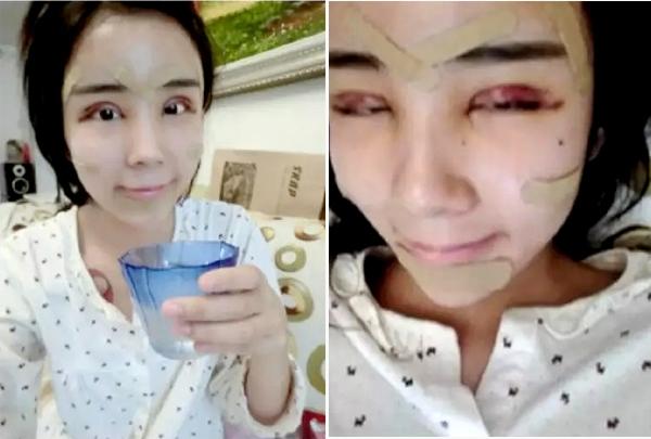 """Lý Ân Hy quyết định """"trùng tu"""" lại toàn bộ khuôn mặt, từ cắt mí mắt, nâng mũi, đến gọt cằm V-line"""