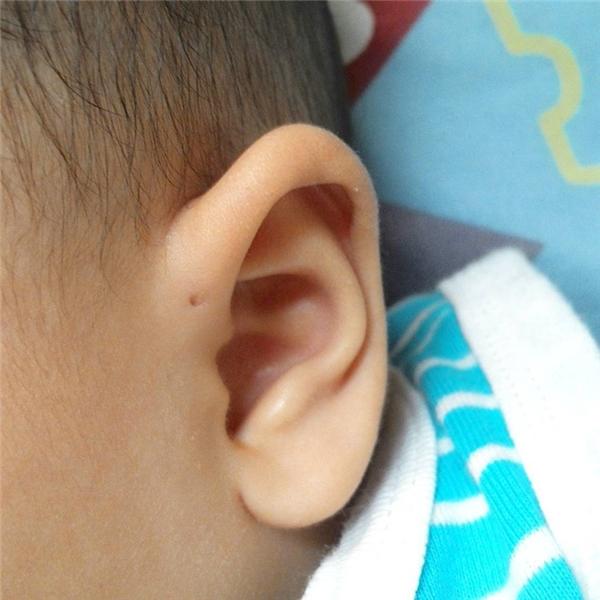 Đây được xem là một dị tật bẩm sinh, thường nằm ở đoạn tiếp xúc giữa khuôn mặt và phần sụn bên ngoài của vành tai.