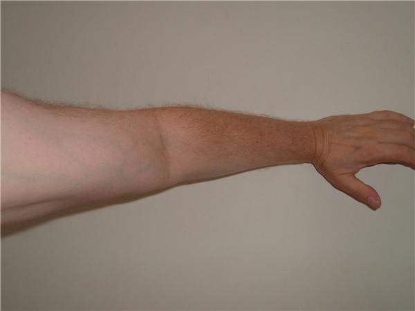 Số #9 là phần giao giữa bắp tay và cẳng tay.(Ảnh: Internet)