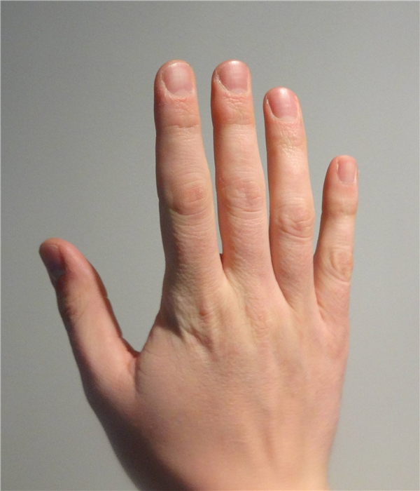 Có ai nhận ra số #10 chính là phần da ở mỗi khớp ngón tay không?(Ảnh: Internet)