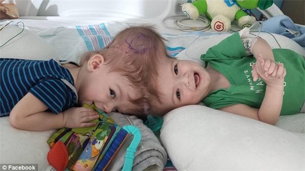 Cặp sinh đôi dính liền đầu từ lúc chào đời.