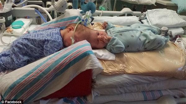 Hình ảnh cặp song sinh khi vừa chào đời.