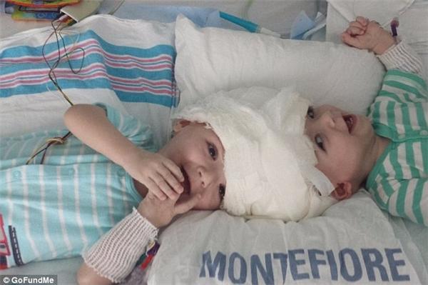 Jadon và Anias chuẩn bị được phẫu thuật.