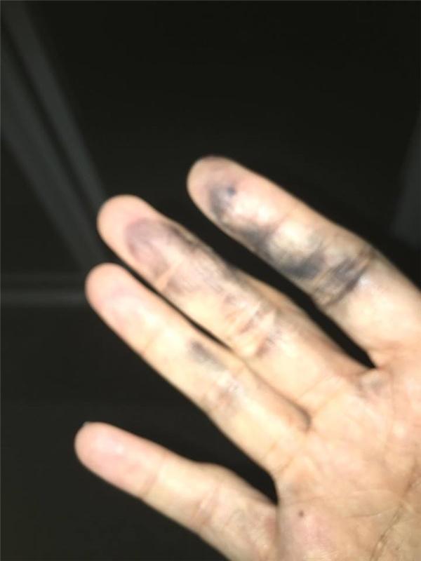 Bàn tay của Cát Phượng bị tê và sưng do điện giật. - Tin sao Viet - Tin tuc sao Viet - Scandal sao Viet - Tin tuc cua Sao - Tin cua Sao