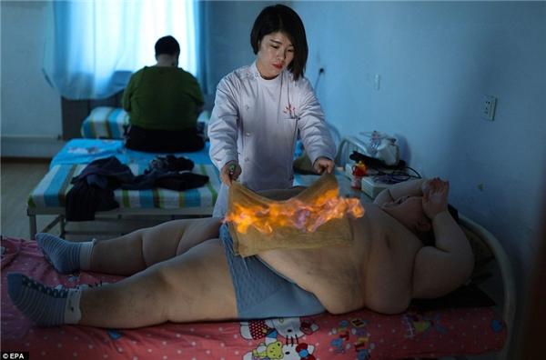 """Gia đình cậu bé đã tìm đếnphương pháp y học cổ Truyền Trung Quốc được gọi là """"đốt dạ dày""""."""