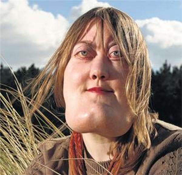 Victoria với khuôn mặt bị biến dạng do bệnhCherubism.