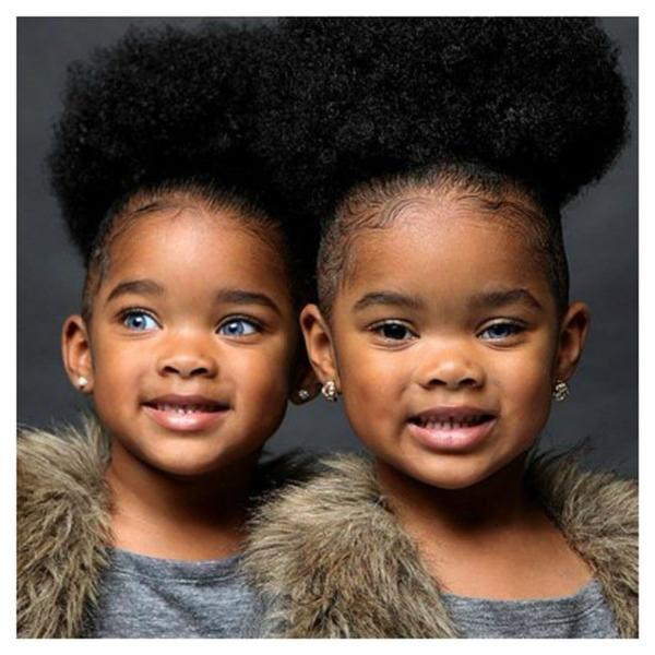 Cặp chị em song sinh đặc biệt nhất thế giới, cô em có cặp mắt xanh biếc nổi bần bật trên là dađen đặc trưng, trong khi cô chị thì có mắt hai màu vô cùng hiếm có khó tìm, một nâu đen một xanh.